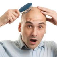 Αντιμετωπίστε με επιτυχία την αραίωση μαλλιών με τη μεταμόσχευση μαλλιών