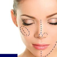 Ρινοπλαστική: Η επέμβαση που αποκαθιστά όλα τα προβλήματα της μύτης, λειτουργικά και αισθητικά