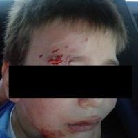 Τραυματισμός 4χρονου παιδιού στο πρόσωπο από επίθεση αδέσποτου σκύλου στο Άργος Ορεστικό – Δείτε φωτογραφία